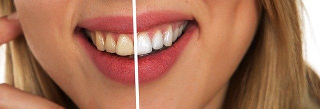 הרבה מעבר לתחזוקה נכונה - כל טיפולי השיניים שאתם חייבים להכיר